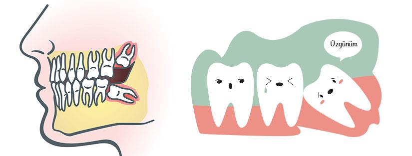 Gömük Diş